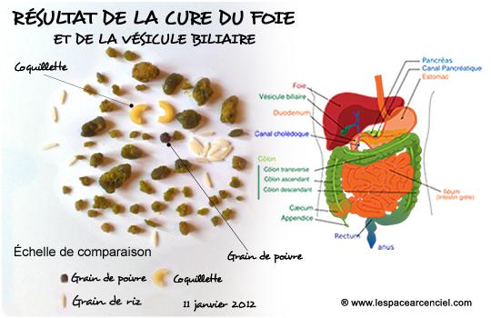 Résultats de la cure du Foie et de la Vésicule Biliaire :-)